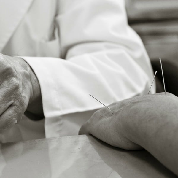Acupuncture in Australia:- A Review of its Current Position